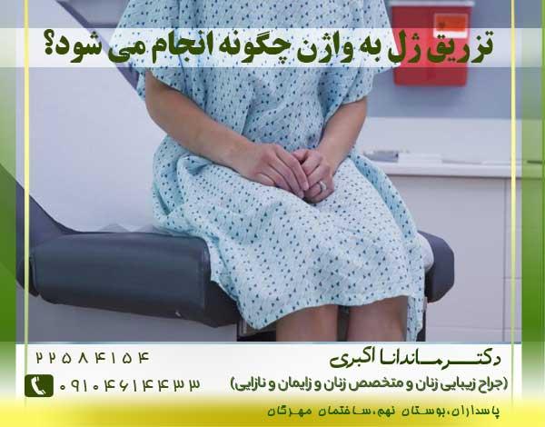 تزریق-ژل-به-واژن-در-شرق-تهران