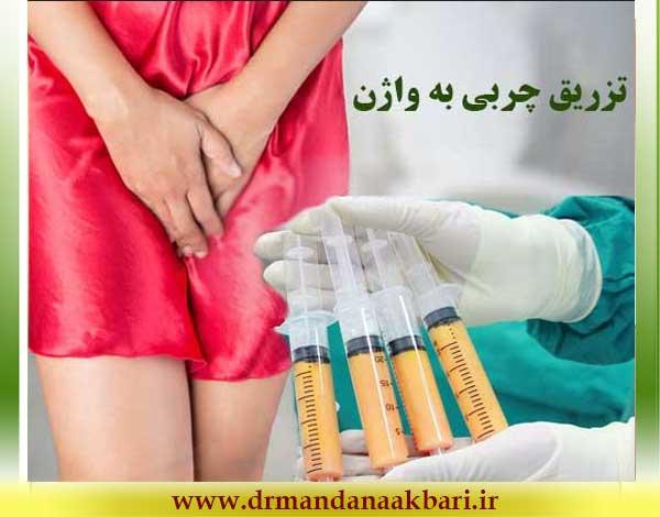 تزریق-چربی-به-واژن