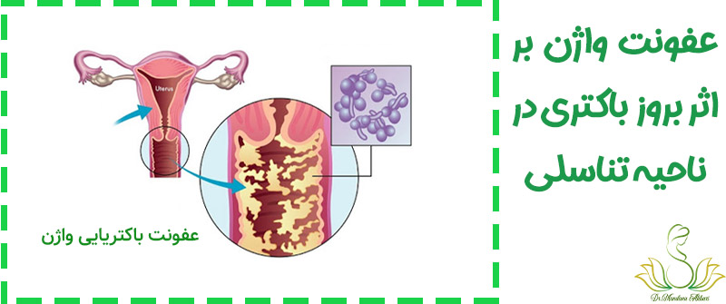 عفونت باکتریایی واژن